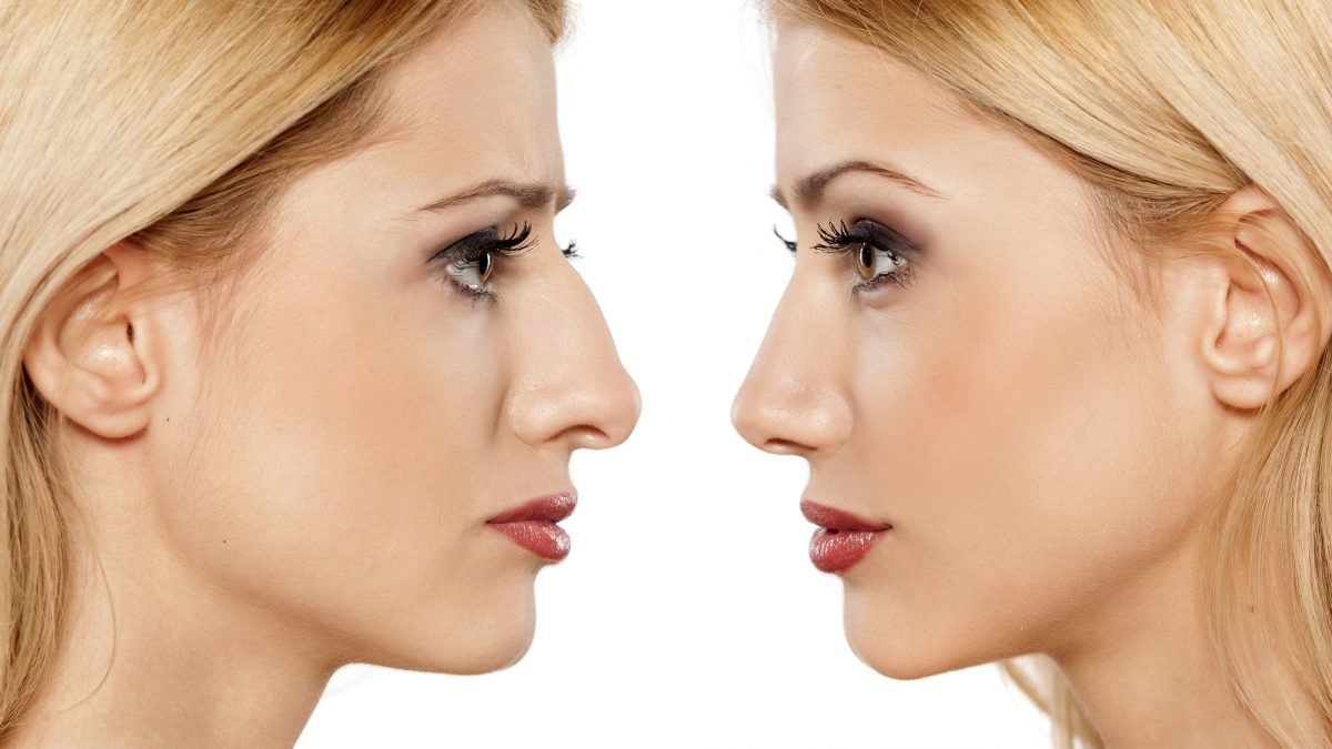 Four Types Of Rhinoplasty According To Their Main Purposes